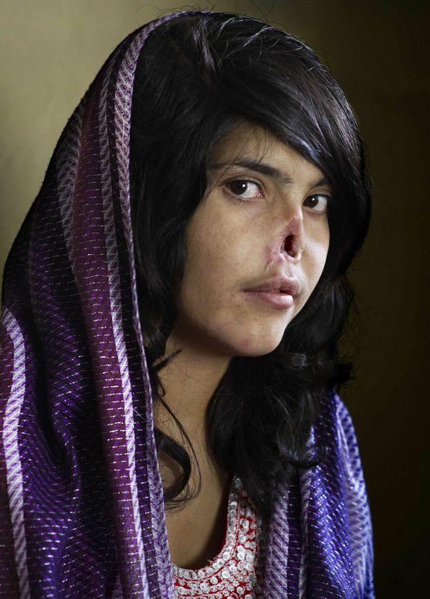 2010年 「Taliban treatment of women (鼻と耳を削がれた女性)」 アフガニスタンの女性ビビ・アイシャ(18歳)。夫の暴力から逃れるため家族のもとへ戻ろうとしたが、捕まってしまい逃亡罪として、夫により耳と鼻を切り落とされた。