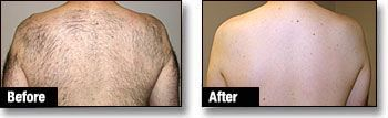 Body Laser Hair Removal - Male Back