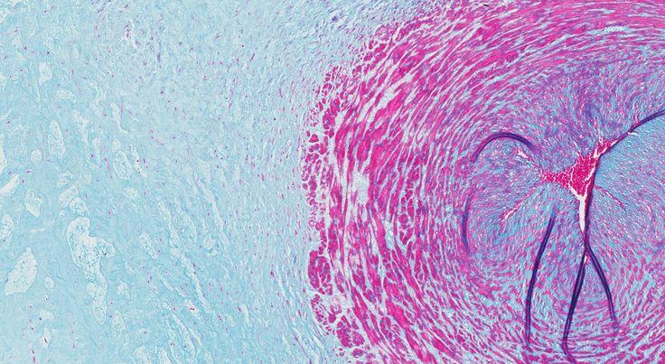 Dit is een microscopische foto van de navelstreng