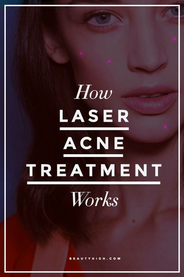 Skin Care: Laser Acne Treatment for clearer-looking skin and less breakouts.  It can even lessen the appearance of dark spots and sun damage. Here's how it works.