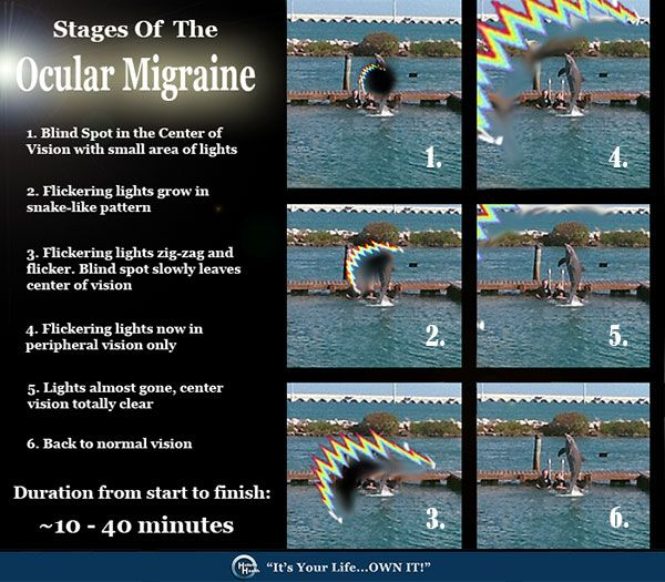 Many people have never heard about this type of Migraine, and it is more common then you might think.     It's called the Ocular Migraine    This type of migraine is really scary when it happens for the first time. And unless you have experienced it, it is often difficult to explain what it is you are feeling and seeing.   Read more at: www.facebook.com/...