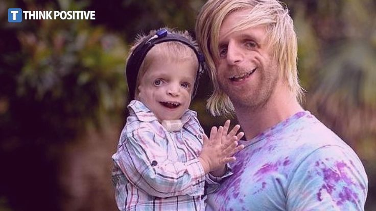 Man Abandoned By His Parents For Being Ugly is an Inspiration to Many - ...