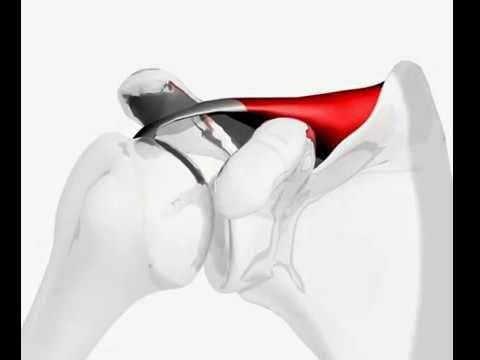 Supraspinatus tendon tear | HubPages