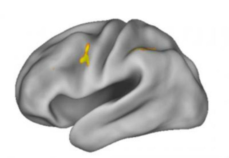 Study Reveals Workings of Working Memory - NeuroscienceNews.com - The area around the dorsal anterior premotor cortex lit up in MRI scans, as subjects underwent experiments designed to test how the brain selects from working memory. Credit Badre Lab/Brown University.