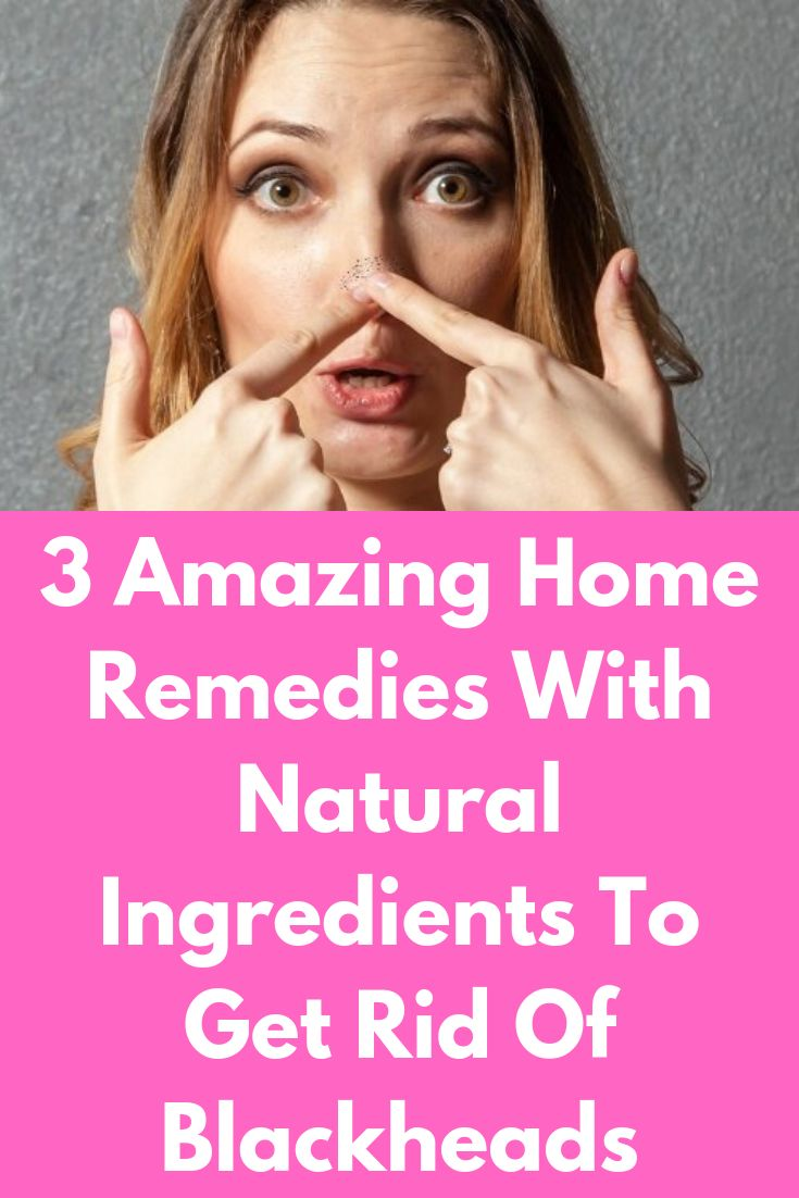 3 Amazing Home Remedies With Natural Ingredients To Get Rid Of Blackheads