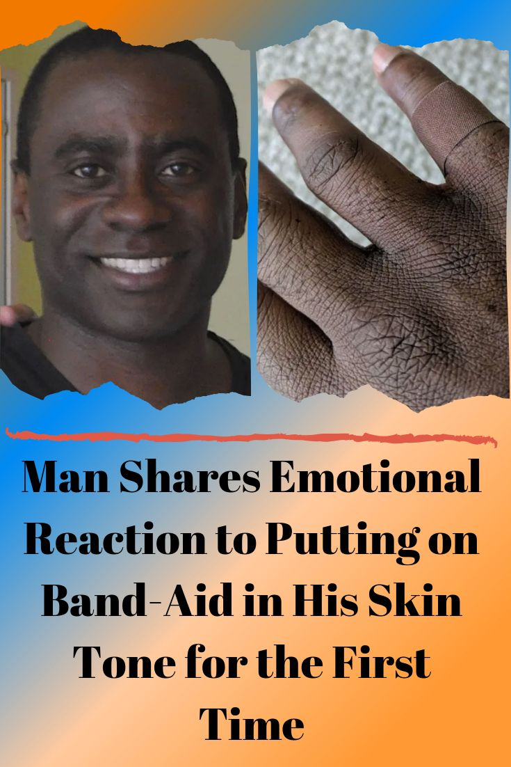 Man Shares Emotional Reaction to Putting on Band-Aid in His Skin Tone for the First Time