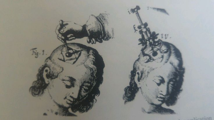Treatment of Head Injuries in the 30 years war. Illustrated!   eBay