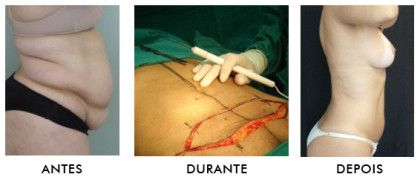 cicatriz de abdominoplastia antes durante e depois da cirurgia