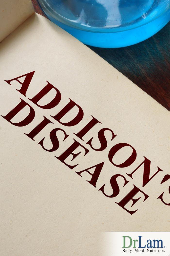 An Informative Guide To Understanding Adrenal Insufficiency Symptoms