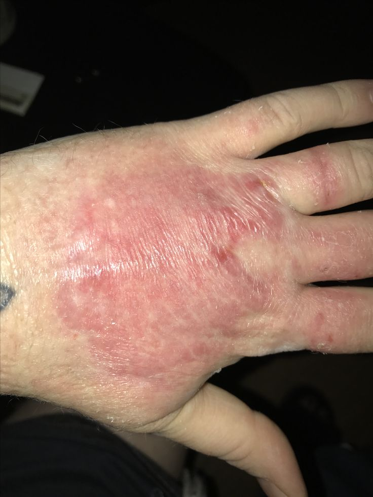 3rd week of burn, cleaned and applied hydrgoel soaked foam to the really dry areas (it's very itchy)