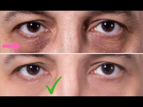 how to get rid of eye bags fast at home