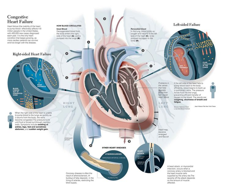 Congestive Heart Failure  #respiratory #rt #rcp