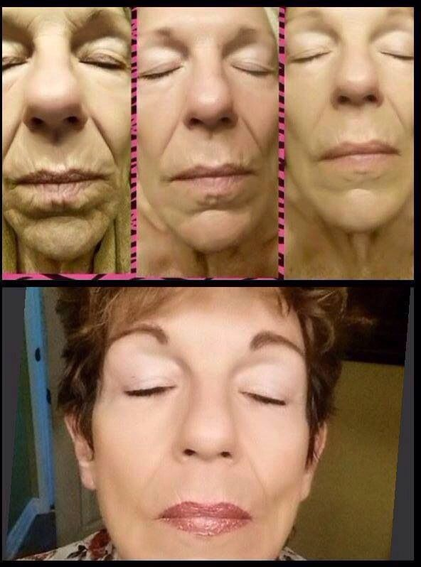 Before and after with Luminesce Cellular Rejuvenation. Www.joannedyck.jeunesseglobal.com