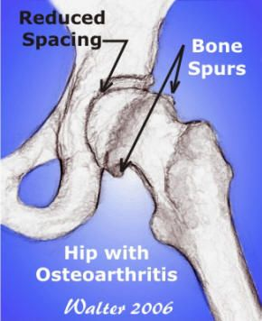 Bone Spurs or osteophytes in hip with osteoarthritis