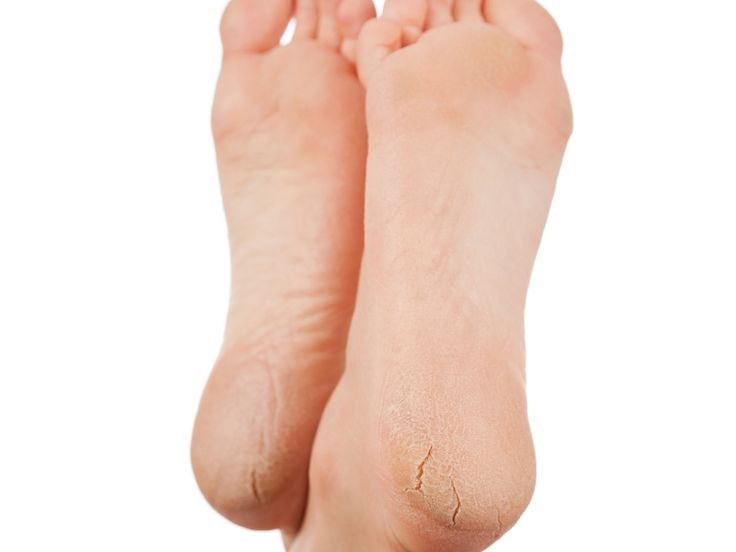 5 Tips To Solve The Problem Of Heel Fissures