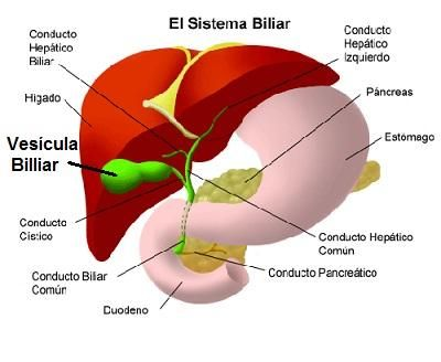 Piedras o cálculos en la vesícula: Síntomas y remedios naturales