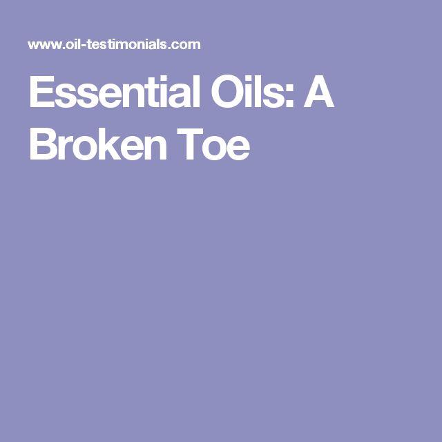Essential Oils: A Broken Toe