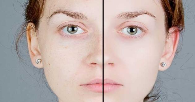 Hücre Yenileyici Maske Güzellik ve cilt bakımı konusunda en çok yararlanılan ürünler yüz maskeleridir. Yüz maskeleri ile insanlar daha güzel ve alımlı bir cilde sahip olmak istemektedirler. Hücre yenileyici maskeler bu konu için en çok tercih edilen maskelerdendir. Hücre yenileyici maskeler aracılığı ile cildinizin yorgun ve yaşlı görüntüsünü, dinç ve diri bir görüntüye kavuşturabilirsiniz. Bunun …