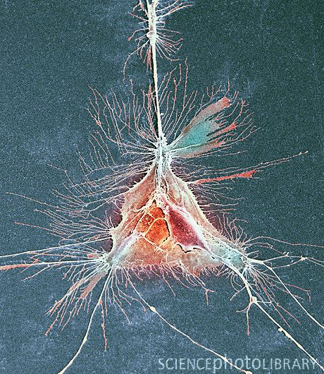 Colored SEM of an oligodendrocyte. This cell forms the myelin sheaths around nerve fibers in the CNS (brain and spinal cord).