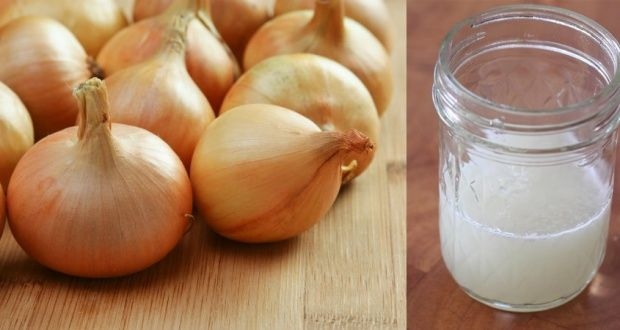 http://www.healthdigezt.com/why-you-should-love-onion-for-your-hair-growth/