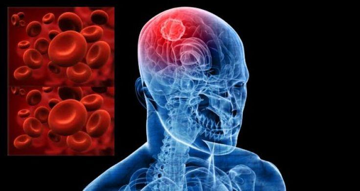 Terapi Stroke http://terapilintah.com/mengenali-gejala-awal-penyakit-stroke/