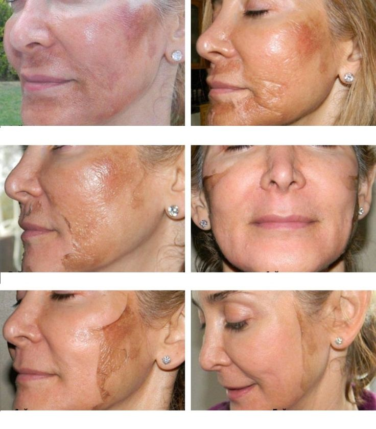 """Chemical peels have become very popular in UK right now. Every have heard of a glycolic peel, but what is a TCA peel? It is a good question and lots people are wondering about. Well, Trichloracetic acid (TCA) peels are considered medium-depth peels. Yes, they are some what similar to a """"lunch time peel"""", but they reach slightly deeper into the skin than alpha hydroxy acid (glycolic acid) peels and because of that often produce much better and longer lasting results."""