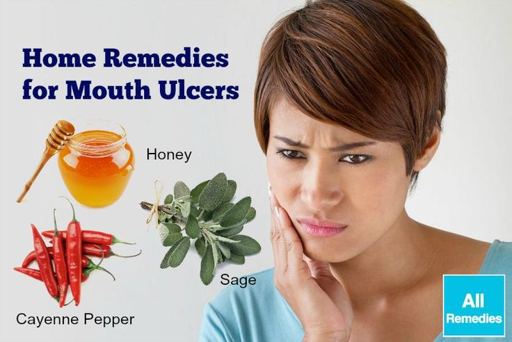 26 natural home remedies for mouth ulcers in adults