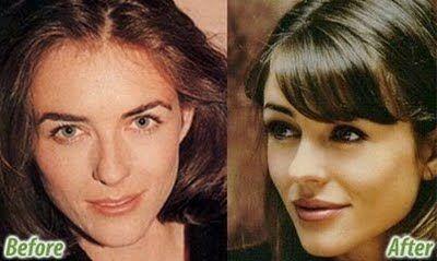 #celebrities #hollywood #showbiz #plastic #surgery #
