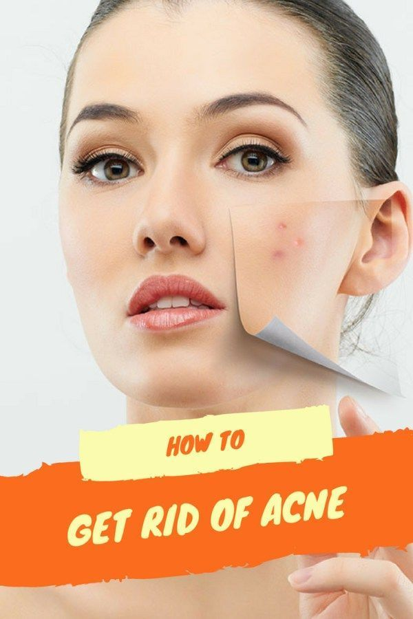 what helps get rid of acne fast