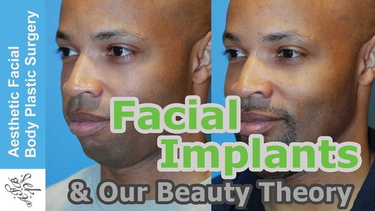 "Learn the Secrets to Facial Beauty & See how it ties in with Facial Implants. Here is our Video: ""Facial Implants & Our Award Winning Theory On Beauty. How Our Theory Helps Get the Best Results."" Cosmetic Surgery or Plastic Surgery is often about how to change someone's looks for the better. Facial Implants can be used to markedly change your face for the better."