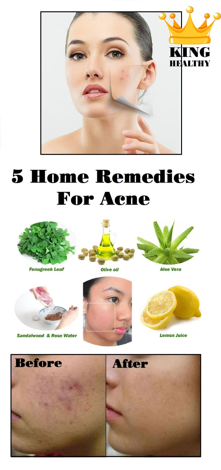 5 Home Remedies For Acne