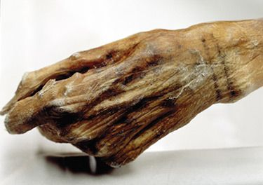 """The Iceman is one of the oldest mummies in the world. However, it is not only his historical age that makes him particularly valuable for scientists but also the way in which he was mummified. Ötzi is a so-called """"wet mummy"""", i.e. one in which humidity is retained in individual cells. The body tissue is elastic and suitable for performing detailed scientific investigations. Moreover, he is a natural mummy, unaltered by burial rites or other interventions. With his complete clothing and…"""