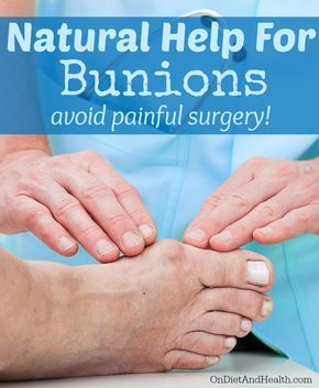 Natural help for #bunions - avoid painful surgery! OnDietAndHealth.com
