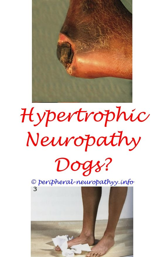 peripheral neuropathy pain worse at night - peripheral neuropathy gestational diabetes.severe rash on hands and neuropathy & kidney disease medications neuropathy top of foot what is the treatment for neuropathy of the feet 5102070567