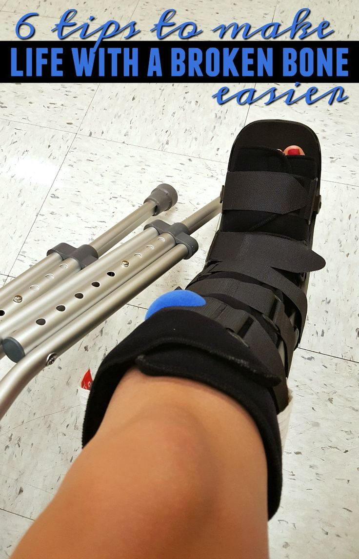 Have you recently broken a bone? I shattered my big toe and life had to change. Check out my tips for making life with a broken bone easier. #LightUpFall @jascoproducts #ad
