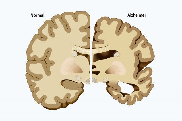 Starvation/cahexia causes cerebral atrophy, especially with added corticosteroids treatment. Protein Treatment Staves Off Alzheimer's Disease Symptoms
