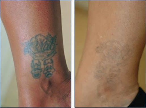 Natural Tattoo Removal: How To Remove Tattoos At Home - Dermabrasion