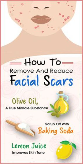 How To Remove And Reduce Facial Scars???