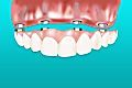 Here's What Dental Implants Should Cost
