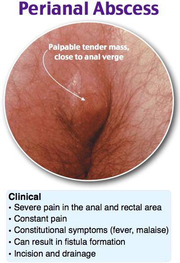 Perianal Abscess Rosh Review