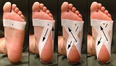 Foot taping for plantar fasciitis. Wrap strip around foot, at level of ball of foot. 2nd strip around heel, starting just below pinky toe, around sides of heel, back up to first strip. 3rd strip around heel, starting just below pinky toe, like step 2 but, circle heel in criss-cross, so that it ends just below big toe. Repeat step 3.