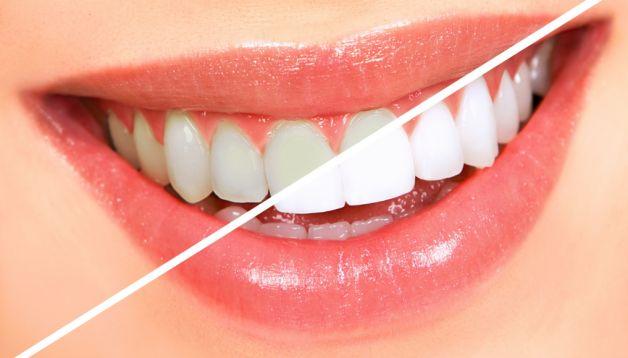 Diş Beyazlatma Evde Nasıl Yapılır? #diş #beyazlatma #sağlık #ağızbakımı