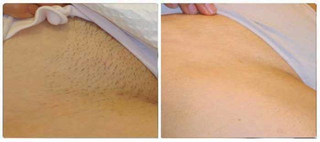 Amazing Tip! Take A Look At How To Permanently Take Off Hair From Your Lady Parts In An All-natural Way Just By Applying This Homemade Mixture #Shave, #Tip, #Waxing | http://thehealthology.com/2016/12/amazing-tip-permanently-take-off-hair/?utm_source=PN&utm_medium=Hair+and+Beauty+tips+%7C+TheHealthology&utm_campaign=SNAP