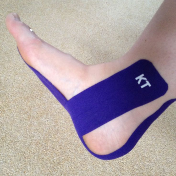 KT Tape purple awesomeness for my Plantar Fasciitis. #kttape