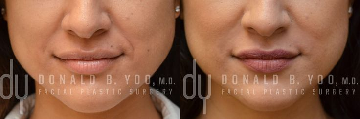 Before and After treating Nasolabial Fold (smile lines) with Juvederm Ultra. Patient desired a softened appearance of her deep smile lines and laugh lines. #smile #smileline #plasticsurgery #filler #drdonyoo
