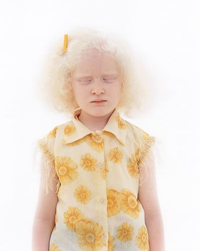 albinism girl have sex