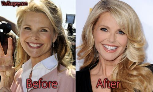 Christie Brinkley plastic surgery. #christiebrinkley #botox #facelift #plasticsurgery #beforeafter #actress