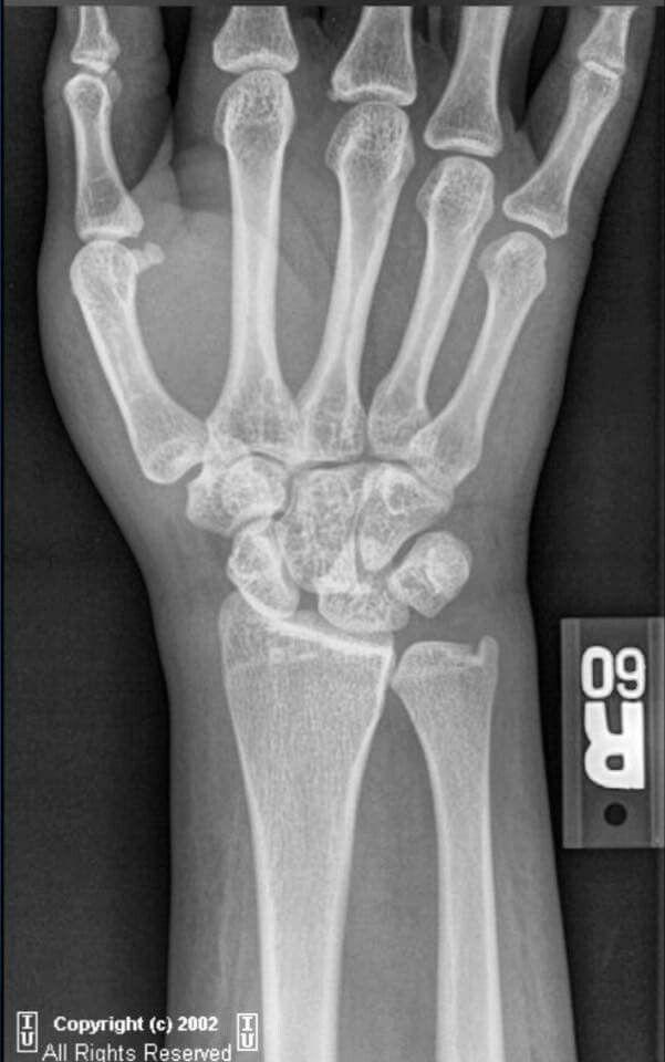69 besten Minor injuries Bilder auf Pinterest | Physiotherapie ...
