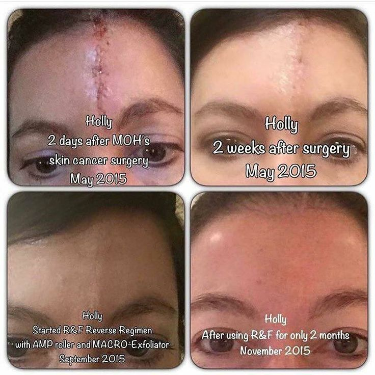 Meet Holly!  She had a nasty scar after having surgery from skin cancer.  Having cancer in itself is unimaginable then to have a scar that size on the middle of your forehead...  Thankfully Rodan+Fields was able to help in a HUGE way!  She started with the Reverse Regimen adding the Amp MD Roller & Macro Exfoliator!  Love seeing testimonies like these!  Know someone with a scar they're self conscious about?  Or any skin concern for that matter?  I'd love to help!  #antiaging