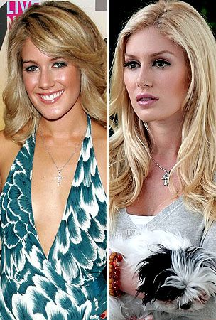 Heidi Montag before and after plastic surgery (image hosted by celebridoodle.com)